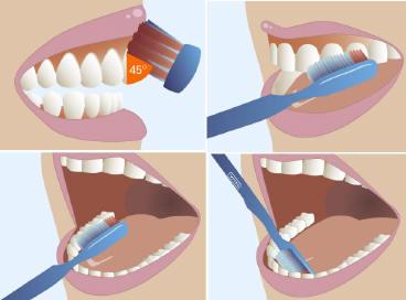 higienes dentales